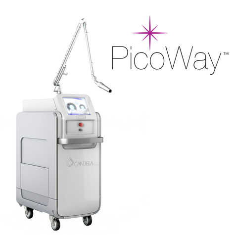 Picoway Laser: Tattoo and Pigment Lesions Removal Made Easy